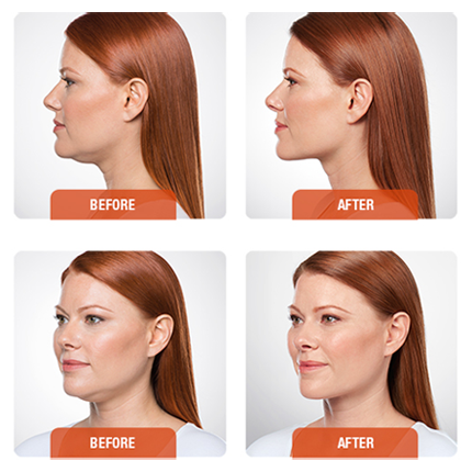 Kybella Before and Afters
